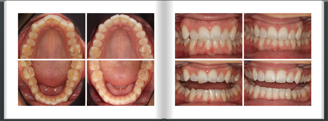 Crooked teeth Straightened with Invisalign