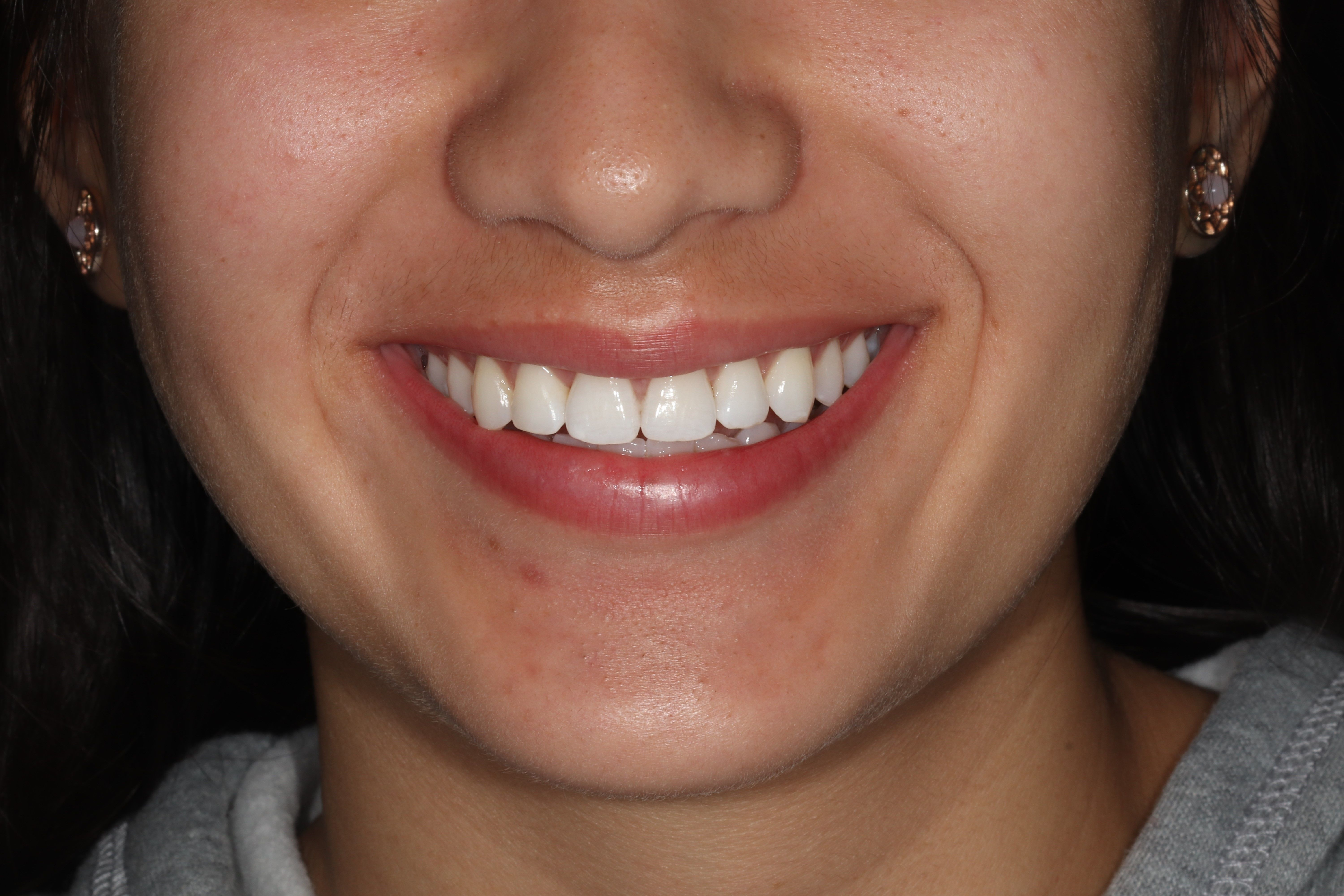 Girl smiling after Invisalign