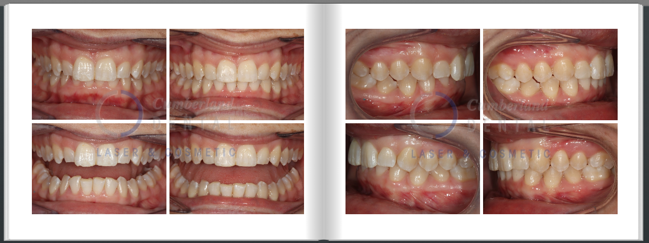 Correcting deep bite with Invisalign