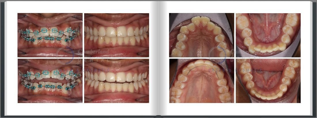 Closing an open bite in teenager with orthodontic braces