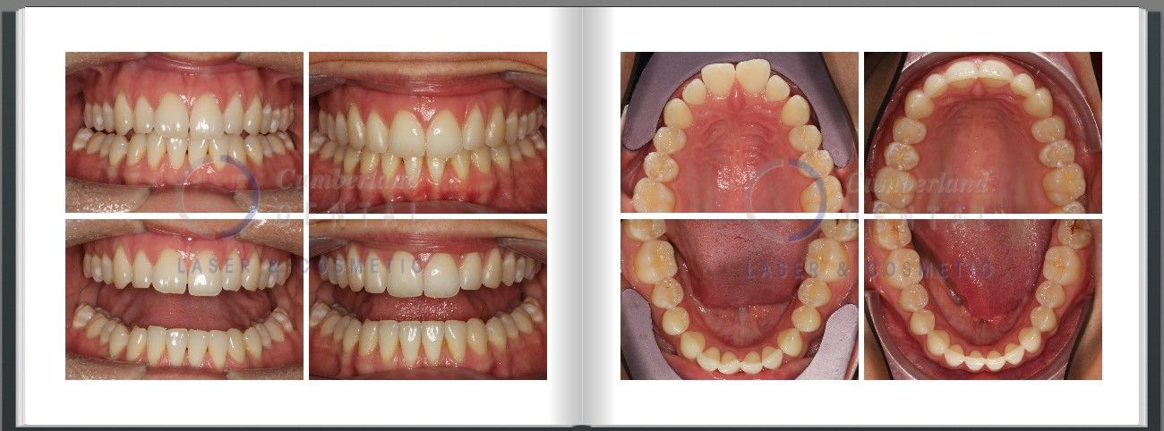 Teeth spaces closed with Invisalign