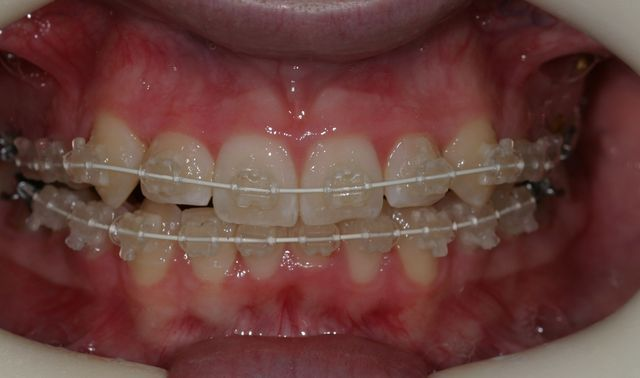 crowdedteethbraces.jpg - large